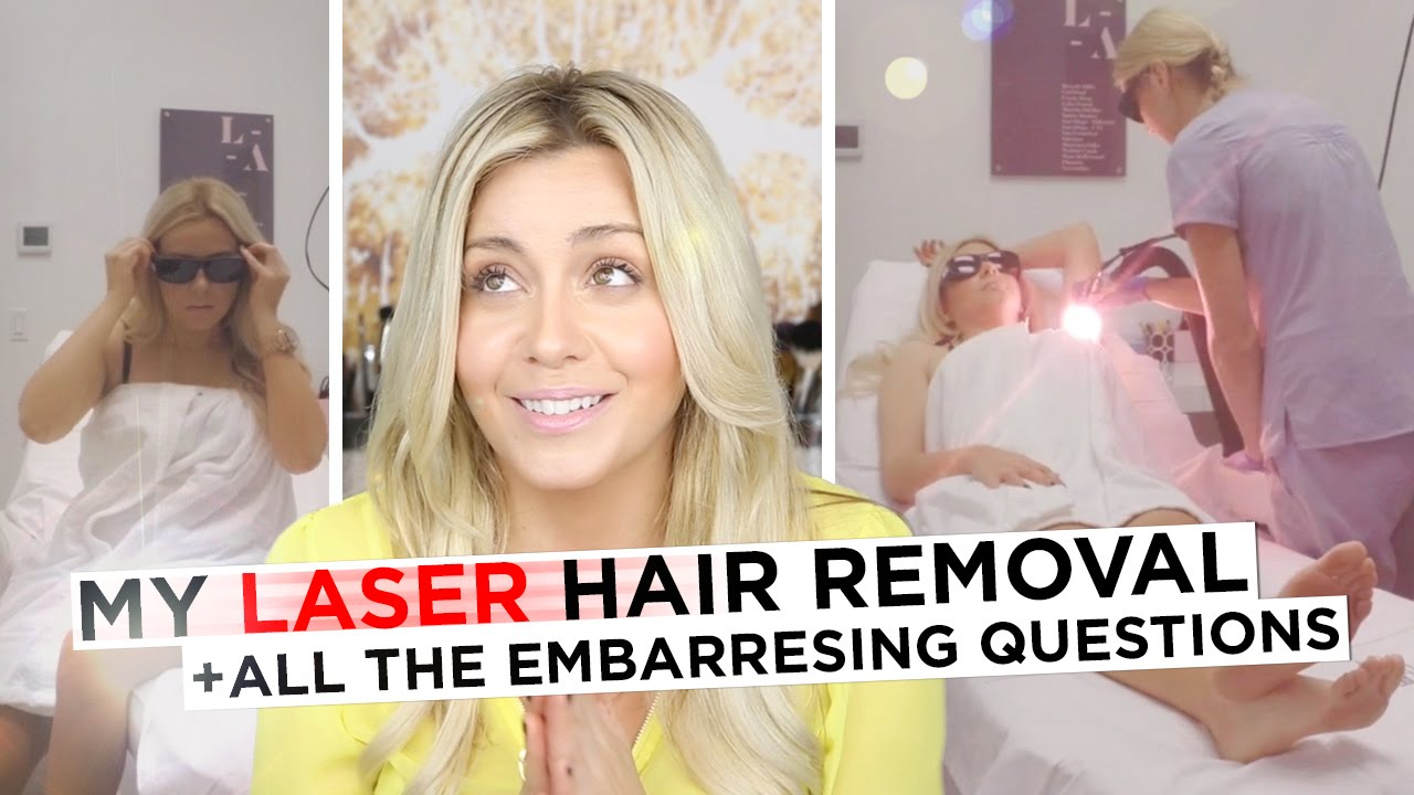 My Laser Away Hair Removal Experience All The Embarrassing