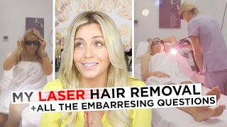 My Laser Away Hair Removal Experience + All the Embarrassing Questions