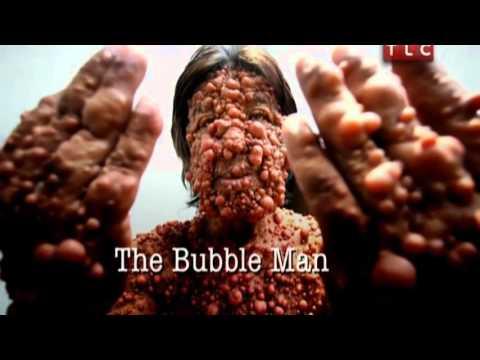 Человек пузырь Моя Ужасная История