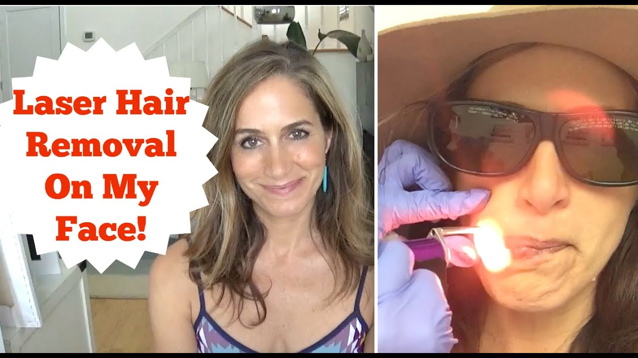 Laser Hair Removal On My Face YouTube - Laser hair removal face