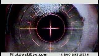Lasik Eye Surgery Financing
