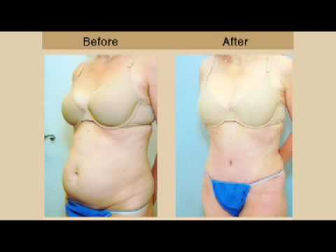 Tummy Tuck Procedures, New Jersey, Plastic Surgery, Dr. Andrew Miller