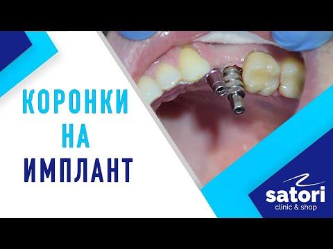 Имплантация зубов: коронки на импланты, снятие оттиска, фиксация коронок