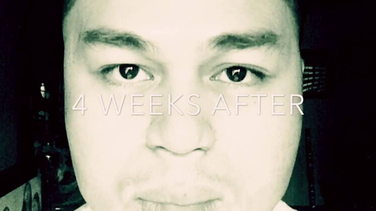 Male Rhinoplasty VLOG-4   PHILIPPINES   Asian Nose Lift   ICON CLINIC   Dr   Eric Yapjuanco