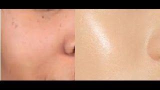 How Get Crystal Clear Glowing Skin Spotless Skin Tone