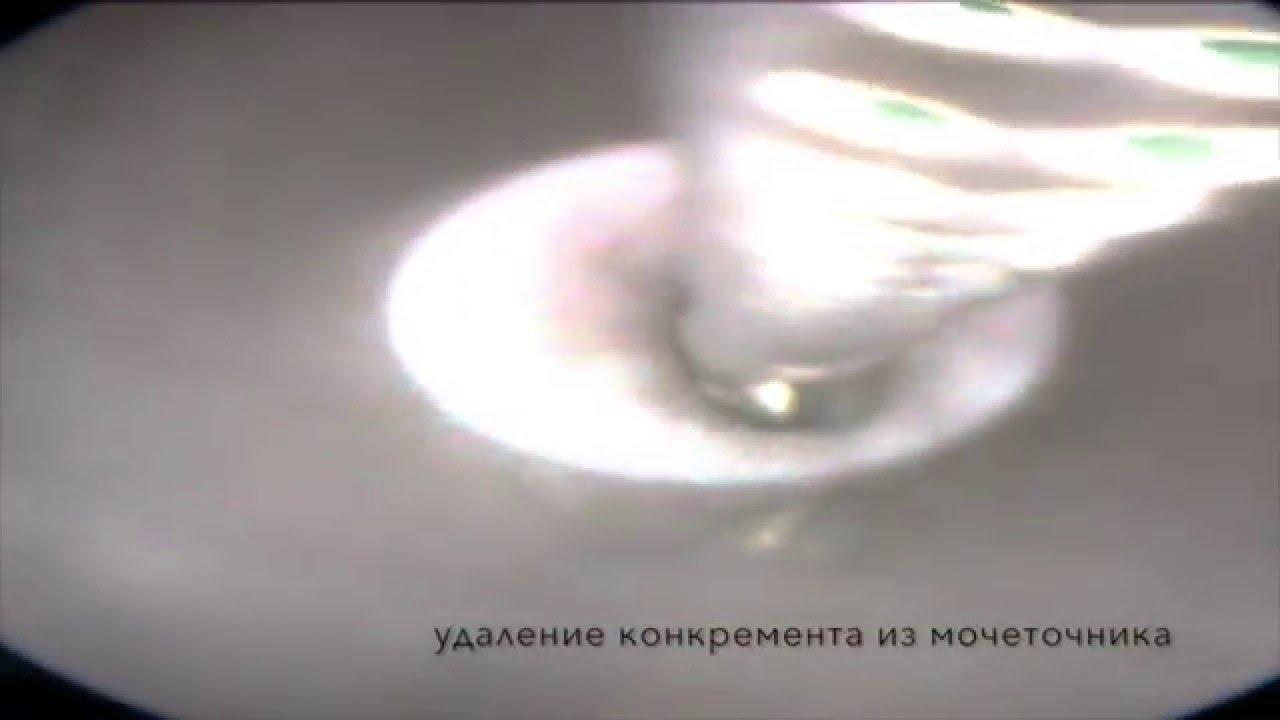 Уретероскопия