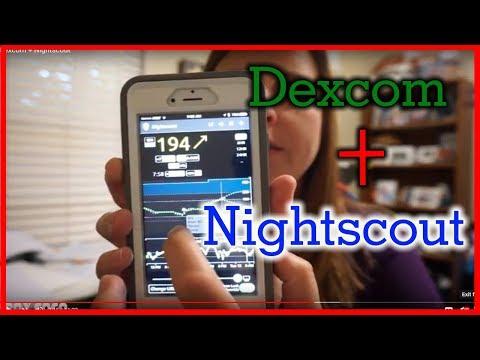 Dexcom + Nightscout
