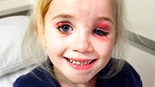 Her Smile Looked Weird... Then Doctors Shocked Us...