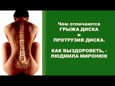 Чем отличаются Протрузия и Грыжа Межпозвоночного Диска, - доктор Людмила Миронюк