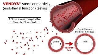 VENDYS -- Endothelial Function Measurement Explained