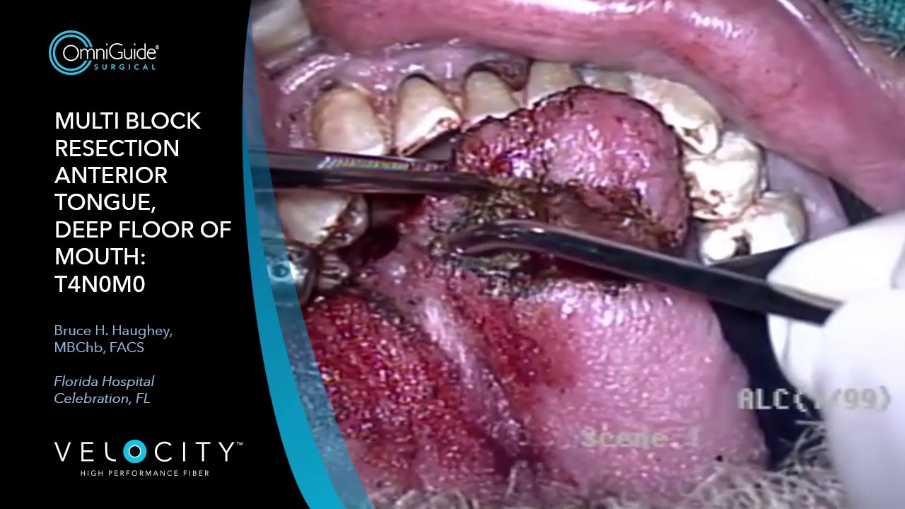 Deep Floor of Mouth and Anterior