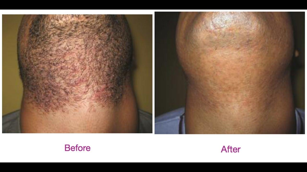 comment éviter les poils incarnés barbe