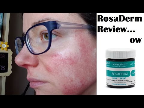 So...This Happened - DermaMed Rosaderm Review On Rosacea | Rosy JulieBC