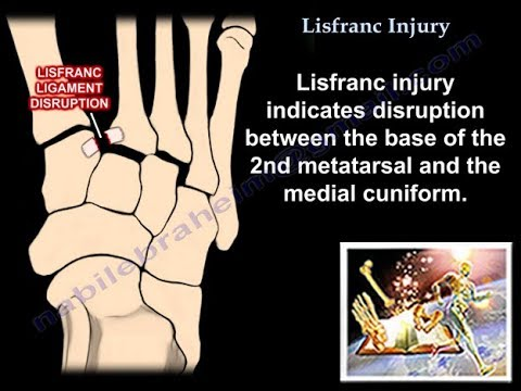 Lisfranc Injury - Everything You Need To Know - Dr. Nabil Ebraheim ...