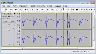 heartbeats free sound effects Mp3