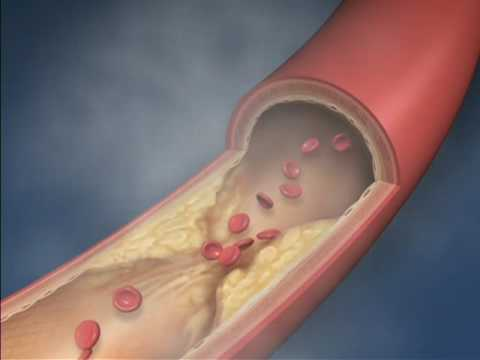 Benefits of Smoking Bans-Mayo Clinic