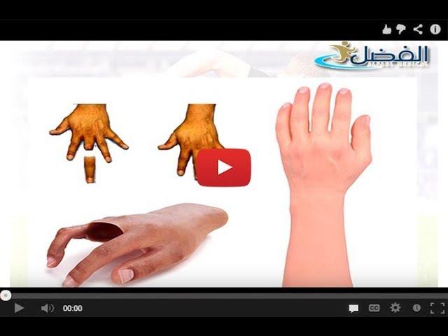 الاطراف الصناعية السيليكون - استخدامها فى البتر الجزئى للقدم او الكف او الاصابع
