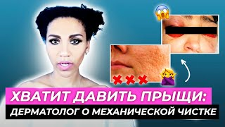 Чем опасна МЕХАНИЧЕСКАЯ ЧИСТКА ЛИЦА: инфекции, постакне, поры //ЧИСТКА кожи с акне: все альтернативы