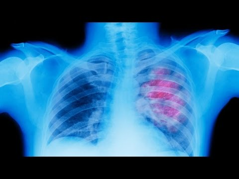 Cuba's Lung Cancer Treatment Coming to US?