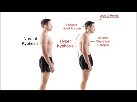 Mayo Clinic WARNING on Forward Head Posture Causes Pinched Nerves & Disc Herniations / #1 Exercise