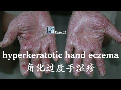 severe hyperkeratotic hand eczema SHHE 严重角化过度手湿疹