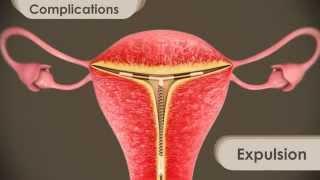 IUD   intra uterine device