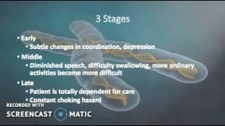Huntington's Disease Presentation Kenedy & Amanda