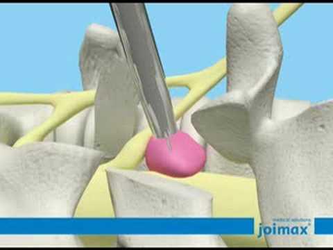 Animatie Video Endoscopische Hernia Operatie