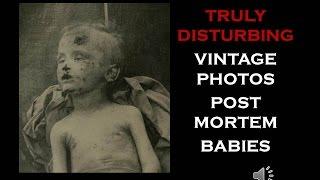 TRULY DISTURBING POST MORTEM BABIES