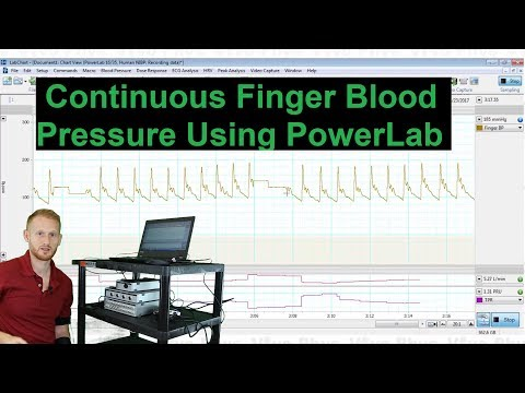 Continuous Finger Blood Pressure in PowerLab