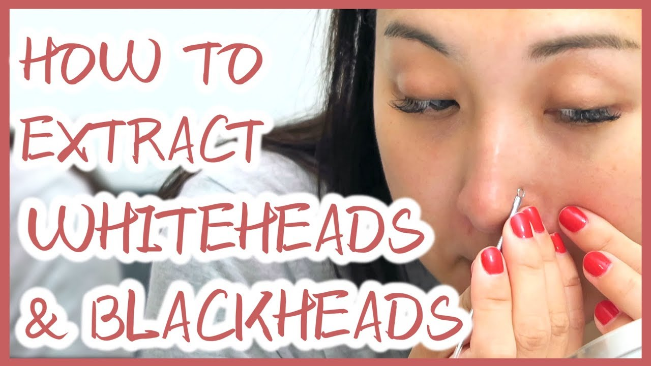 How To Extract Whiteheads And Blackheads Properly