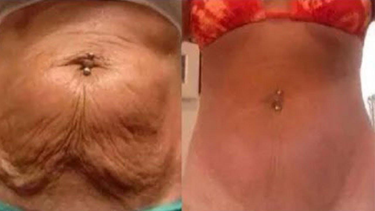 Eliminiert schlaffe Haut am Bauch in nur wenigen Tagen