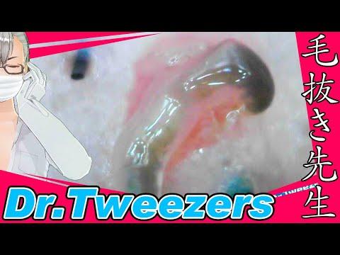 356 [200x Zoom] 環境音 Dr. tweezers 毛抜き先生の角栓や毛根