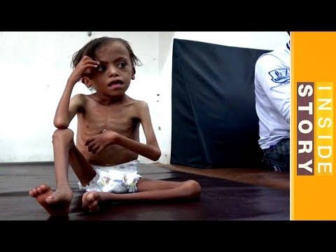 Inside Story - How can Yemen's humanitarian crisis be solved