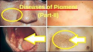 Nevus of Ota Treatment, Mongolian Spots | Diseases of Pigment (Part-II) | MultipleLentiginesSyndrome