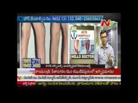 AVIS HOSPITALS - Varicose Veins Clinic Hyderabad, Bangalore, and Chennai - Dr. Rajah Koppala