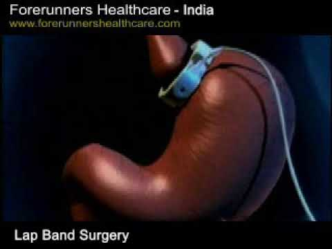 Gastric band surgery in India: A safe and effective solution for obesity