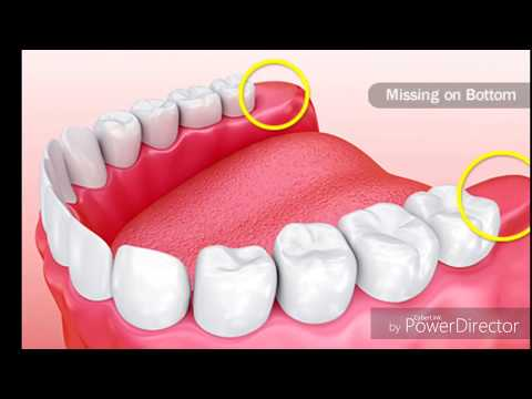 How long does pain after wisdom tooth extraction last | how