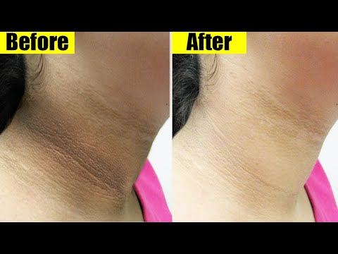 remove-black-neck-fast-&-lighten-dark-skin-easy-home-remedy