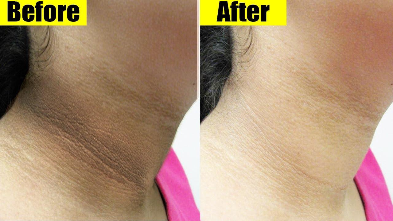 Remove BLACK NECK Fast & Lighten Dark Skin Easy Home Remedy - YouTube
