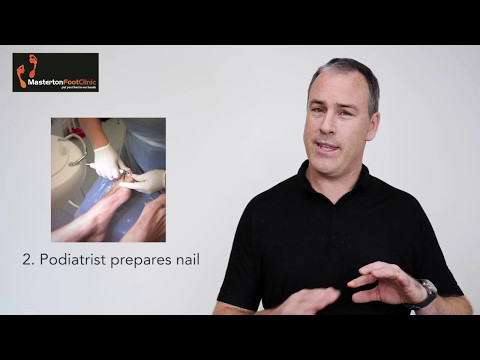 Cold Laser Therapy for Fungal Nails