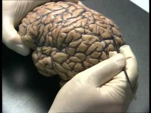 The Human Brain Anatomy - YouTube