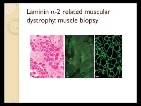 an overview of muscular dystrophy