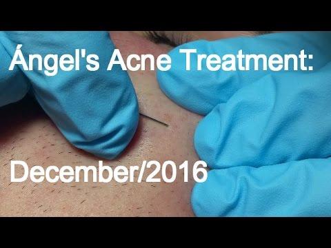 Ángel's Acne Treatment:  December 2016
