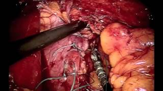 Robotic Repair of Large Paraesophageal Hernia with Mesh and Toupet Fundoplication
