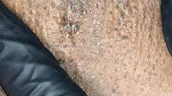 hqdefault - Pimple Under Arm Pits