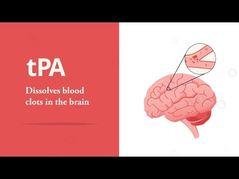 Stroke treatment: the importance of tPA