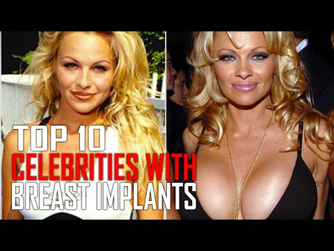Top 10 Celebrities With Huge Breast Implants thumbnail