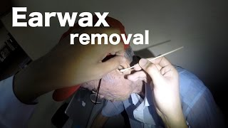 Earwax removal and cleaning made easy