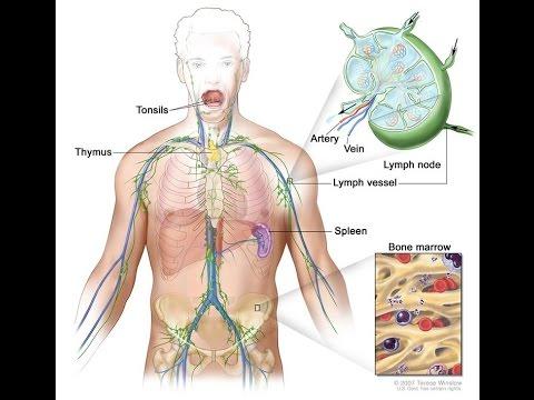 Hodgkin Lymphoma